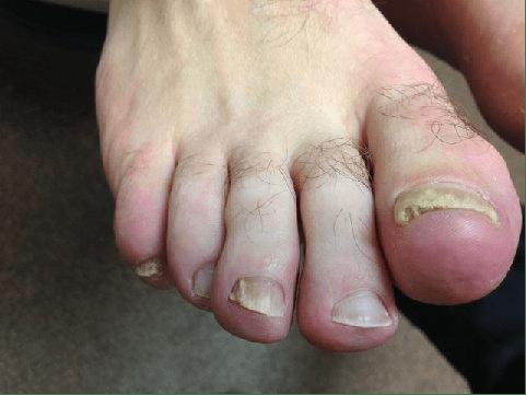 fungal toenails, fungal toenail laser treatment