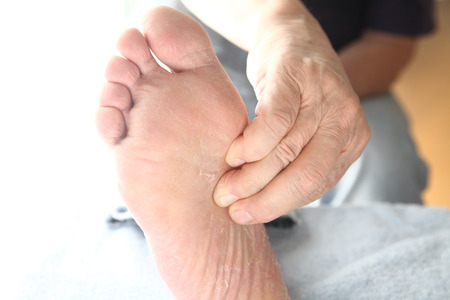 man holding foot with arthritis pain